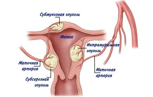fibroznye opukholi 1