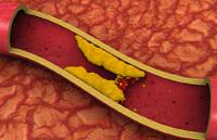 История холестерина