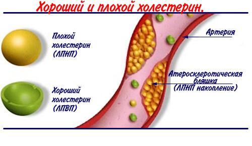 Хороший и плохой холестерин
