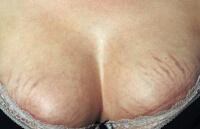 Растяжки на груди после кормления грудью