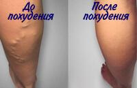 Похудение как лечение варикоза.