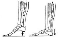 Виброгимнастика от варикоза