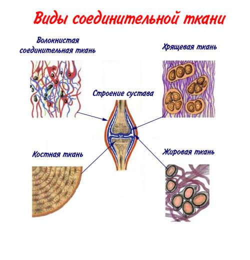 Отложение шлаков в соединительной ткани