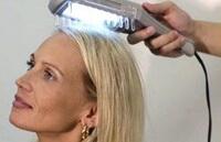 Лечение псориаза на голове с помощью УФ-лучей